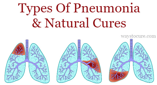 Types Of Pneumonia And Natural Cures