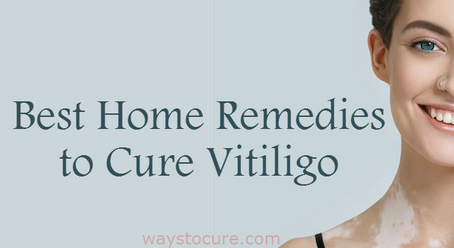 Best Home Remedies To Cure Vitiligo