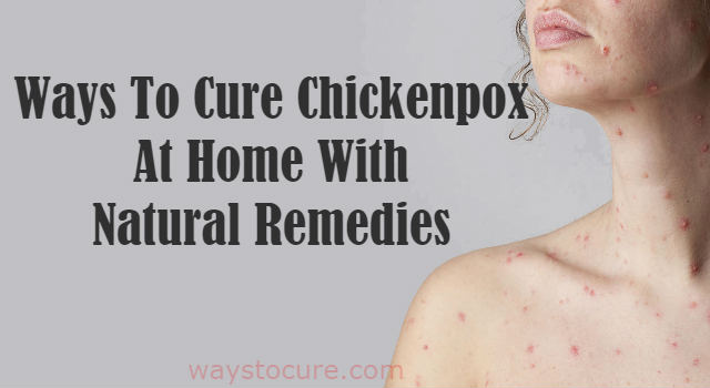 Ways To Cure Chickenpox At Home With Natural Remedies