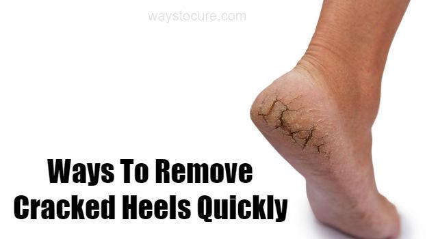 Ways To Remove Cracked Heels Quickly