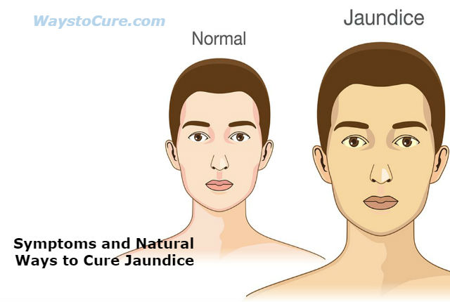 Jaundice Treatment